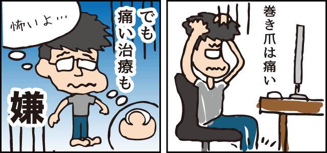 巻き爪治療 痛い