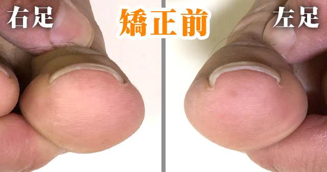 巻き爪ロボ矯正前