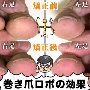 巻き爪ロボの効果
