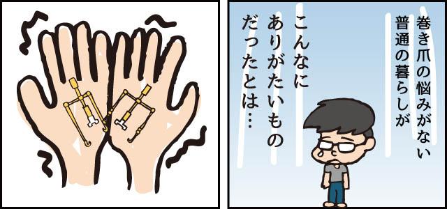 巻き爪 治った 巻き爪ロボ