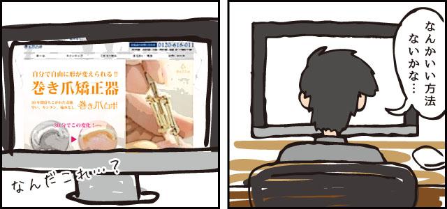 巻き爪ロボ 購入