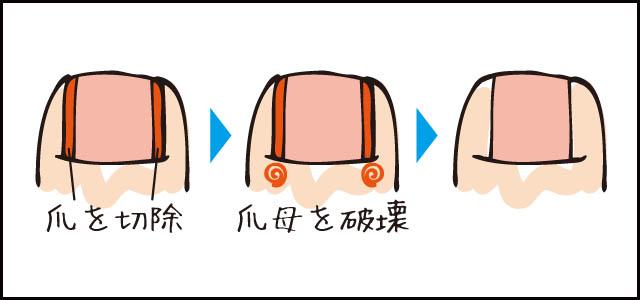 巻き爪手術 フェノール法